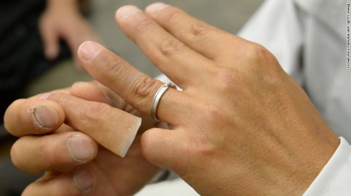 """Mantan anggota yakuza berumur 53 tahun memamerkan jari silikonnya dalam sebuah kunjungan ke kantor spesialis prostetik Shintaro Hayashi di Tokyo. Ada dua situasi di mana anggota geng terpotong jarinya, biasanya kelingking: ketika dia melakukannya sebagai pengganti bayar utang atau menebus kesalahan yang dapat mengancam keanggotaan atau nyawanya, disebut """"jari kematian"""". Jika dia korbankan satu jari demi bawahan atau teman, itu disebut """"jari kehidupan""""."""