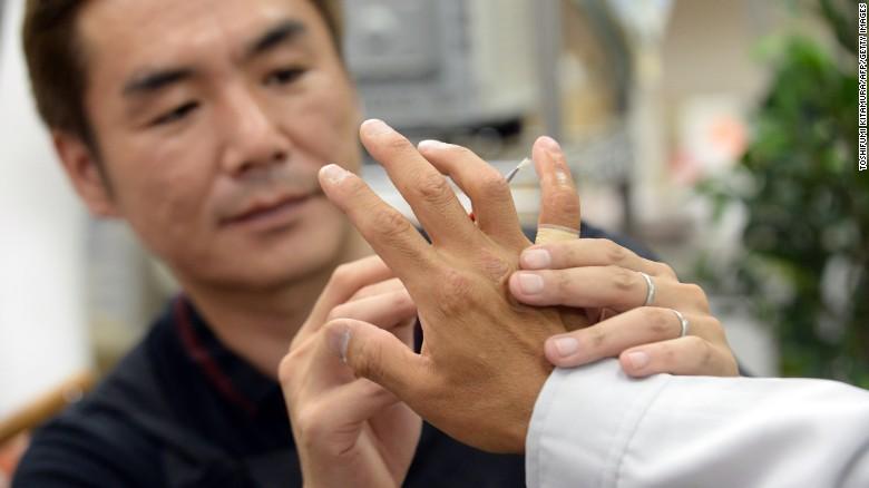 Spesialis prostetik Shintaro Hayashi, kiri, memeriksa jari silikon mantan anggota yakuza di Tokyo.